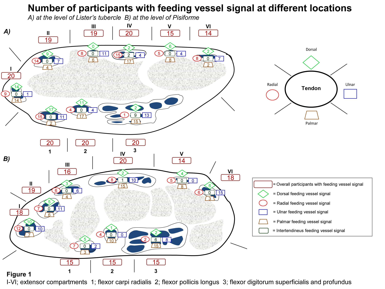 3d Ultrasound Doppler Findings In Wrist Tendon Sheaths Of Healthy