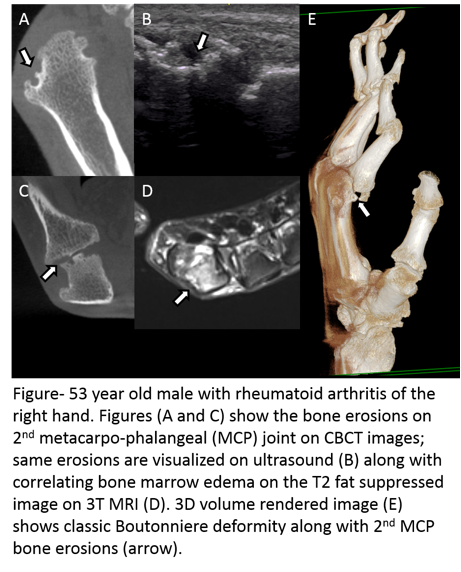 Evaluation Of Bone Erosions In Rheumatoid Arthritis Patients Using Cone Beam Computed Tomography Magnetic Resonance Imaging And Ultrasound Acr Meeting Abstracts